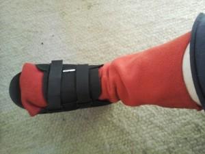 Red fleece sleeve slid over foot and lower leg. Walking shoe on.